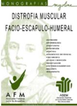 Distrofia muscular facio-escapulo-humeral. Abre en ventana nueva